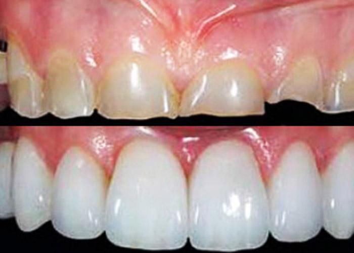 Reabilitação Oral